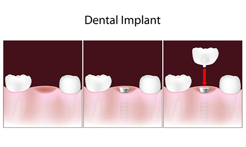 dental implants in commack