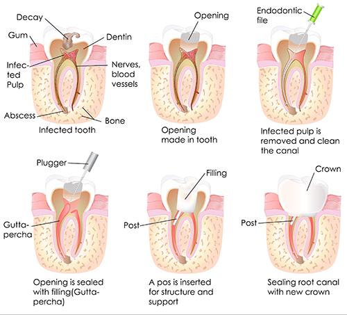 root canal in commack
